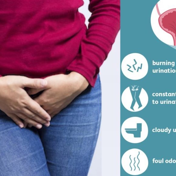 DYSURIA (Painful Urination)